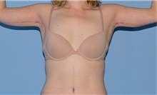 Body Contouring After Photo by Siamak Agha, MD; Newport Beach, CA - Case 44122