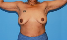 Body Contouring After Photo by Siamak Agha, MD; Newport Beach, CA - Case 44128