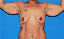 Body Contouring Before Photo by Siamak Agha, MD; Newport Beach, CA - Case 44128