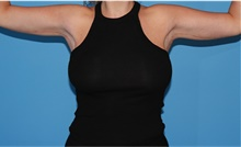 Arm Lift After Photo by Siamak Agha, MD; Newport Beach, CA - Case 44133