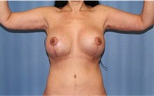 Arm Lift After Photo by Siamak Agha, MD; Newport Beach, CA - Case 44137