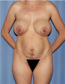 Mommy Makeover Before Photo by Siamak Agha, MD; Newport Beach, CA - Case 44151