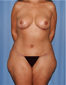 Mommy Makeover After Photo by Siamak Agha, MD; Newport Beach, CA - Case 44181