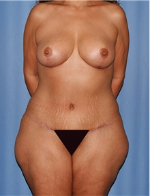 Body Contouring After Photo by Siamak Agha, MD; Newport Beach, CA - Case 44184