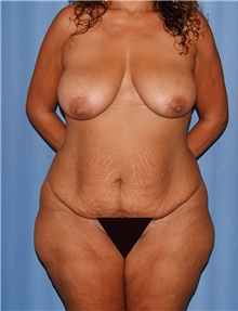 Body Contouring Before Photo by Siamak Agha, MD; Newport Beach, CA - Case 44184