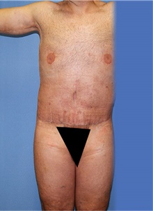 Body Lift After Photo by Siamak Agha, MD; Newport Beach, CA - Case 44314