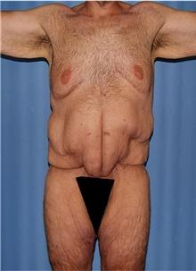 Body Lift Before Photo by Siamak Agha, MD; Newport Beach, CA - Case 44314