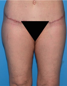 Thigh Lift After Photo by Siamak Agha, MD; Newport Beach, CA - Case 44534