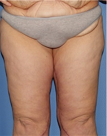 Thigh Lift After Photo by Siamak Agha, MD; Newport Beach, CA - Case 44536