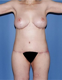 Body Lift After Photo by Siamak Agha, MD; Newport Beach, CA - Case 44691