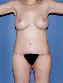 Body Contouring After Photo by Siamak Agha, MD; Newport Beach, CA - Case 44692