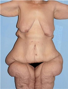 Body Contouring Before Photo by Siamak Agha, MD; Newport Beach, CA - Case 44692