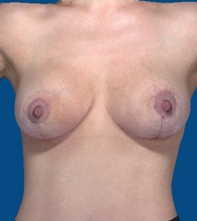 Breast Augmentation After Photo by Katerina Gallus, MD; San Diego, CA - Case 31758