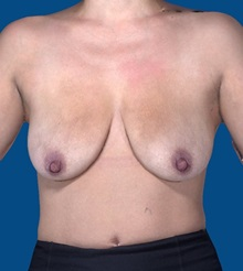 Breast Augmentation Before Photo by Katerina Gallus, MD; San Diego, CA - Case 31758