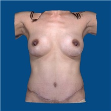 Tummy Tuck After Photo by Katerina Gallus, MD; San Diego, CA - Case 31823