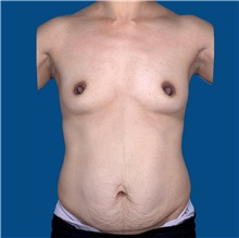 Tummy Tuck Before Photo by Katerina Gallus, MD; San Diego, CA - Case 31823