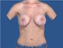 Breast Augmentation After Photo by Katerina Gallus, MD; San Diego, CA - Case 32105