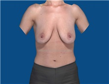 Breast Augmentation Before Photo by Katerina Gallus, MD; San Diego, CA - Case 32105
