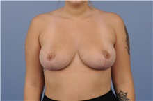 Breast Reduction After Photo by Katerina Gallus, MD; San Diego, CA - Case 33442