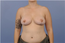 Breast Reduction After Photo by Katerina Gallus, MD; San Diego, CA - Case 33443