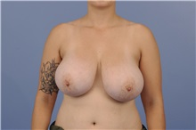 Breast Reduction Before Photo by Katerina Gallus, MD; San Diego, CA - Case 33443