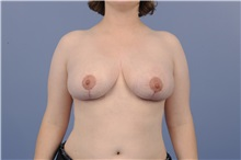 Breast Reduction After Photo by Katerina Gallus, MD; San Diego, CA - Case 33444