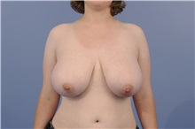 Breast Reduction Before Photo by Katerina Gallus, MD; San Diego, CA - Case 33444