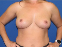 Breast Implant Removal After Photo by Katerina Gallus, MD; San Diego, CA - Case 37513