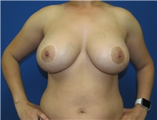 Breast Implant Removal Before Photo by Katerina Gallus, MD; San Diego, CA - Case 37513