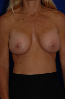 Breast Augmentation After Photo by Eric Egozi, MD; Clearwater, FL - Case 10413