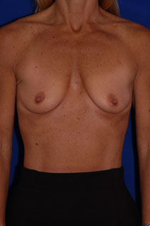 Breast Augmentation Before Photo by Eric Egozi, MD; Clearwater, FL - Case 10413