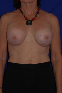 Breast Augmentation After Photo by Eric Egozi, MD; Clearwater, FL - Case 10416