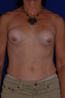 Breast Augmentation Before Photo by Eric Egozi, MD; Clearwater, FL - Case 10416