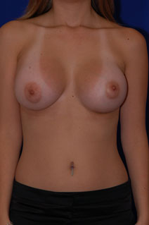 Breast Augmentation After Photo by Eric Egozi, MD; Clearwater, FL - Case 10432
