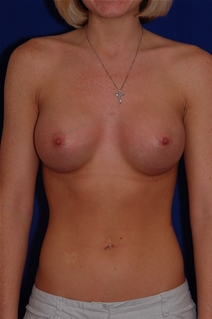 Breast Augmentation After Photo by Eric Egozi, MD; Clearwater, FL - Case 10482