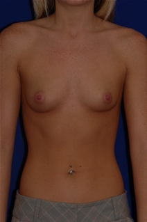 Breast Augmentation Before Photo by Eric Egozi, MD; Clearwater, FL - Case 10482