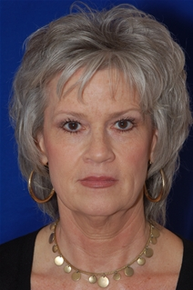 Facelift Before Photo by Eric Egozi, MD; Clearwater, FL - Case 20176