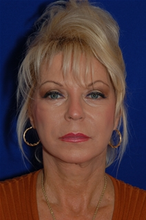 Facelift After Photo by Eric Egozi, MD; Clearwater, FL - Case 22179