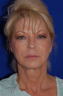 Facelift Before Photo by Eric Egozi, MD; Clearwater, FL - Case 22179