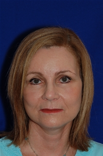 Facelift After Photo by Eric Egozi, MD; Clearwater, FL - Case 22183