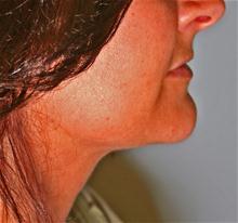 Liposuction After Photo by Robert Buchanan, MD; Highlands, NC - Case 27132