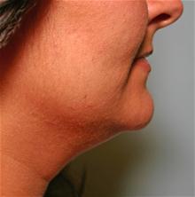 Liposuction Before Photo by Robert Buchanan, MD; Highlands, NC - Case 27132