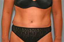 Tummy Tuck After Photo by Robert Buchanan, MD; Highlands, NC - Case 27134