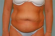 Tummy Tuck Before Photo by Robert Buchanan, MD; Highlands, NC - Case 27134