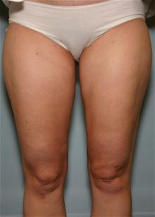 Liposuction After Photo by Robert Buchanan, MD; Highlands, NC - Case 27135