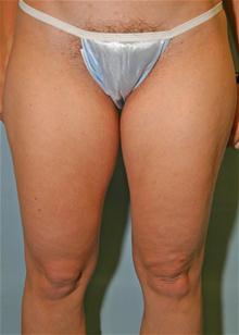 Liposuction Before Photo by Robert Buchanan, MD; Highlands, NC - Case 27135