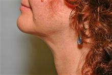 Liposuction After Photo by Robert Buchanan, MD; Highlands, NC - Case 27169