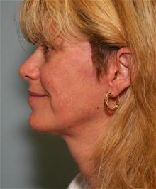 Facelift After Photo by Robert Buchanan, MD; Highlands, NC - Case 27170