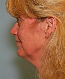 Facelift Before Photo by Robert Buchanan, MD; Highlands, NC - Case 27170