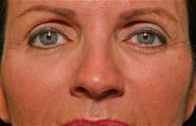 Eyelid Surgery After Photo by Robert Buchanan, MD; Highlands, NC - Case 27172